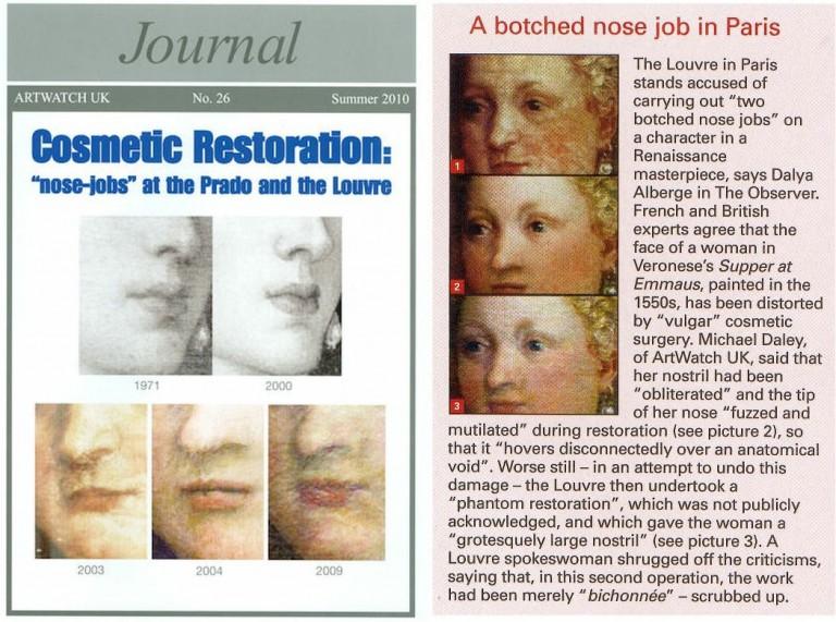 010 [8] nose jobs